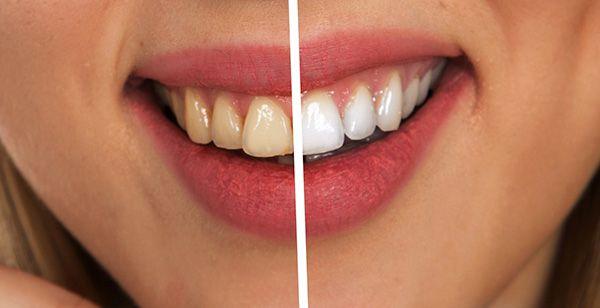 Blanqueamiento de dientes en Madrid - Vallecas